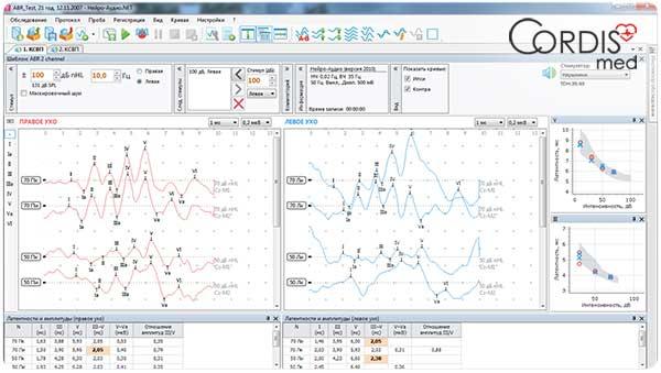 Программа Нейро-Аудио.NET для СВП