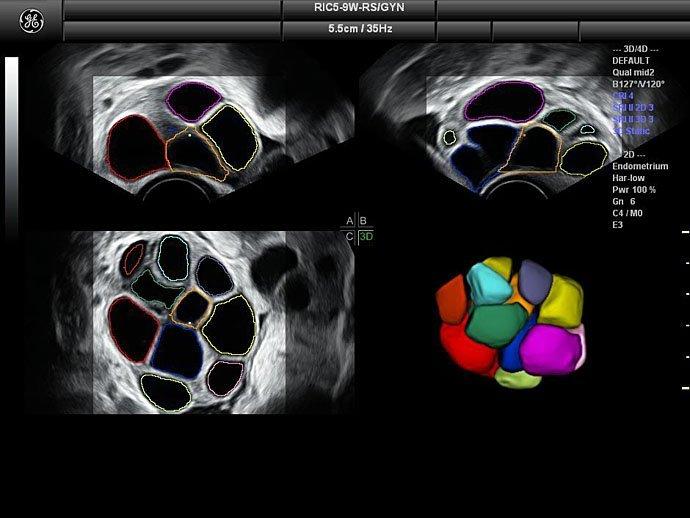 Клиническое изображение (эхограмма)GE Voluson S8