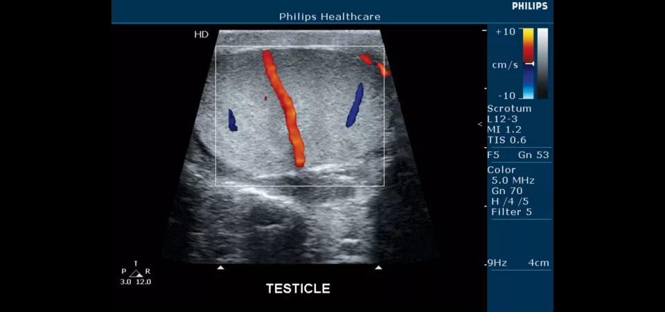 Клинические изображения (эхограммы) полученные на УЗИ аппаратеPhilips HD5