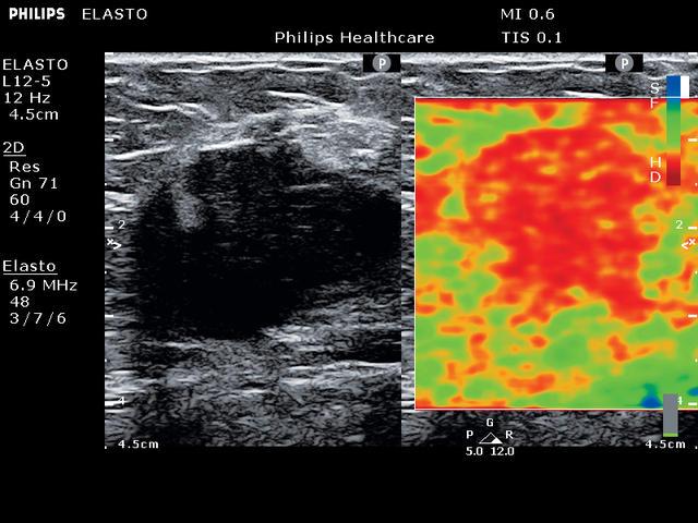 Клинические изображения (Эхограммы) полученные на УЗИ сканере ClearVue 850