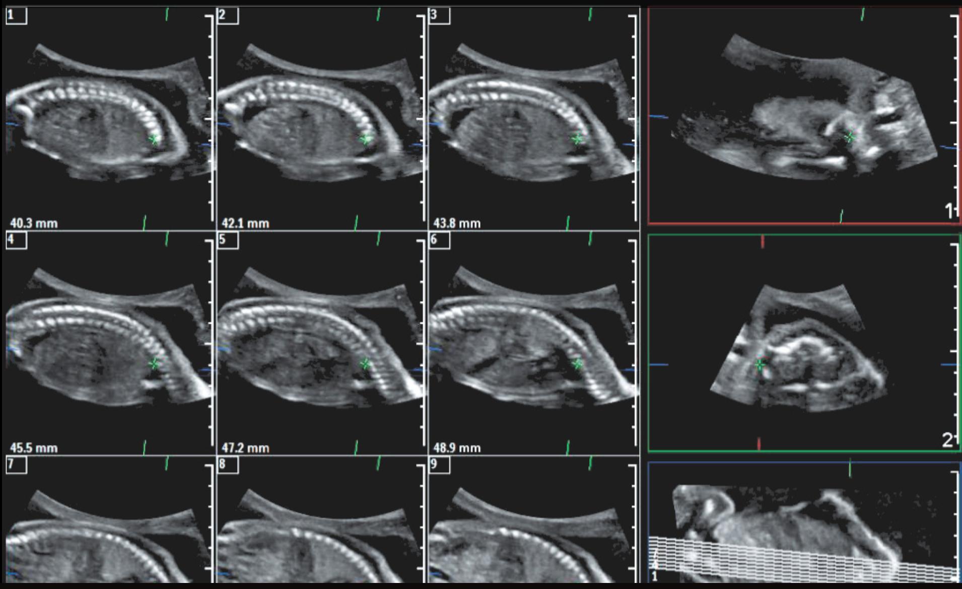 Affiniti 70 - клинические изображения