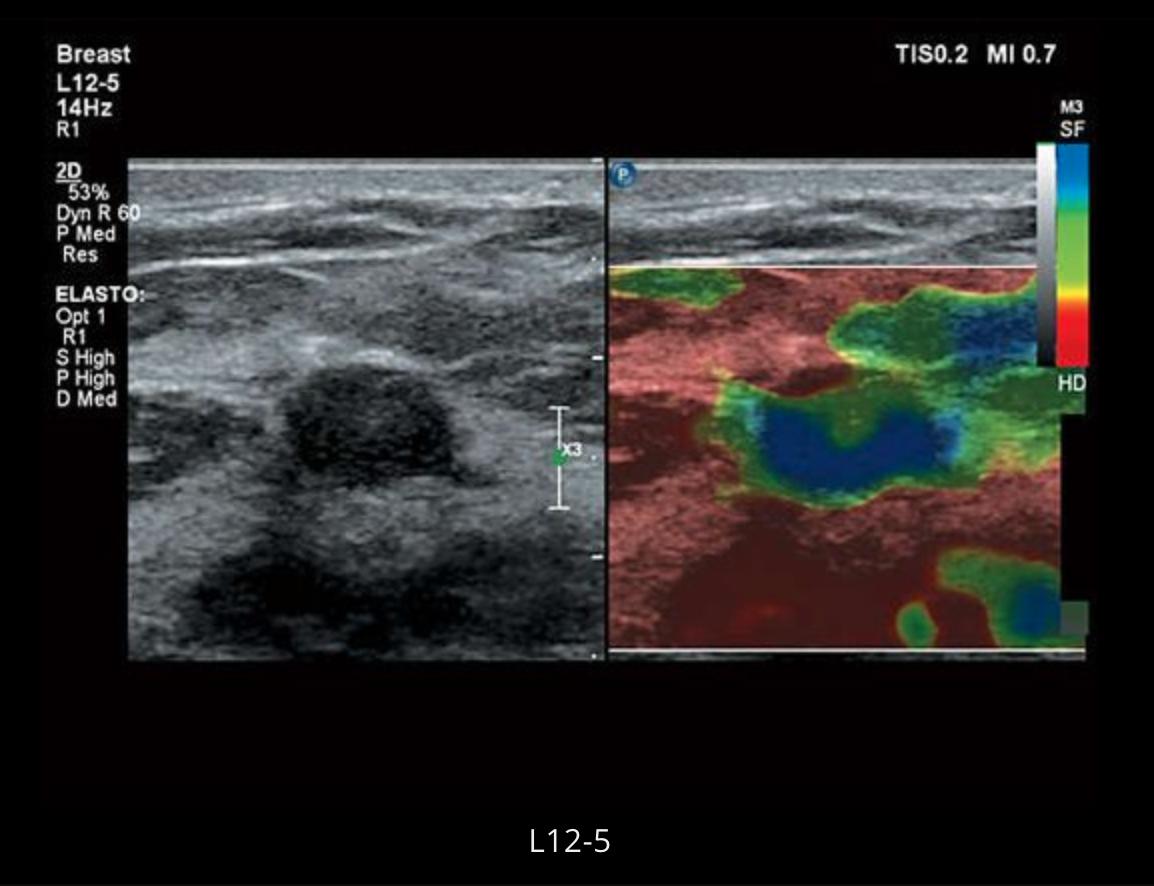 Клинические изображения (эхограммы) полученные на УЗИсканере Philips Affinity50