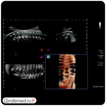 Пример клинического изображения (эхограммы) - УЗИ аппарат Toshiba/Canon Aplio i900 в Cordismed