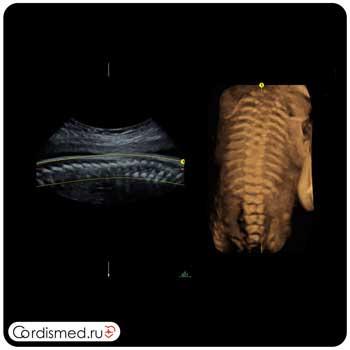 Примеры клинических изображений (эхограммы) УЗИ аппарата GE Voluson E10