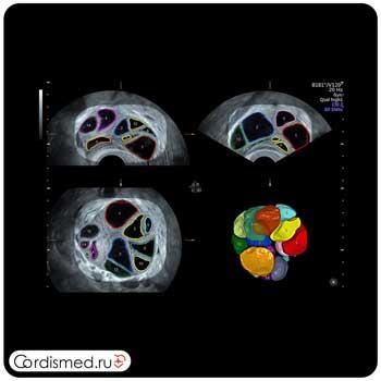 Примеры клинических изображений (эхограммы) УЗИ аппарата GE Voluson E8